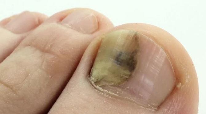 پیروں کے ناخنوں کی فنگس سے نجات بہت آسان