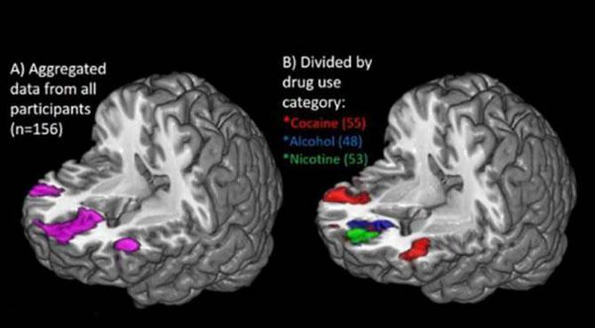 نشہ کرنے والوں کے دماغوں کی سکین ٹیسٹ میں سنسنی خیز انکشافات