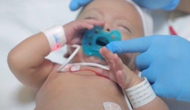 صرف 600 گرام وزنی بچہ، پیدائش کے پانچ ماہ بعد ہسپتال سے صحتیاب